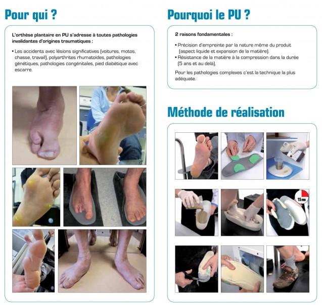 Orthèses plantaires en mousse polyuréthane pour pieds très compliqués